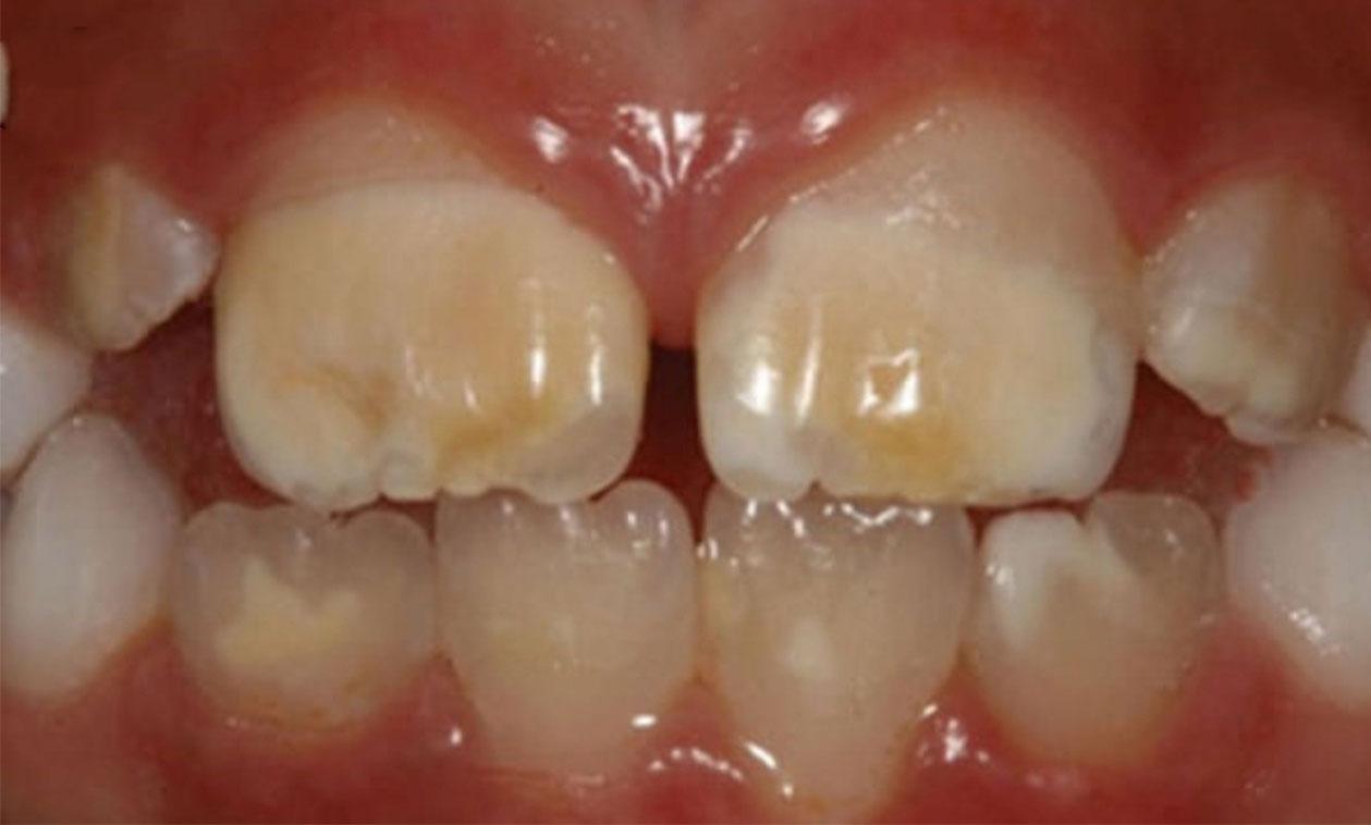 COED   El HIM es un problema cada vez más frecuente en la consulta de odontología infantil