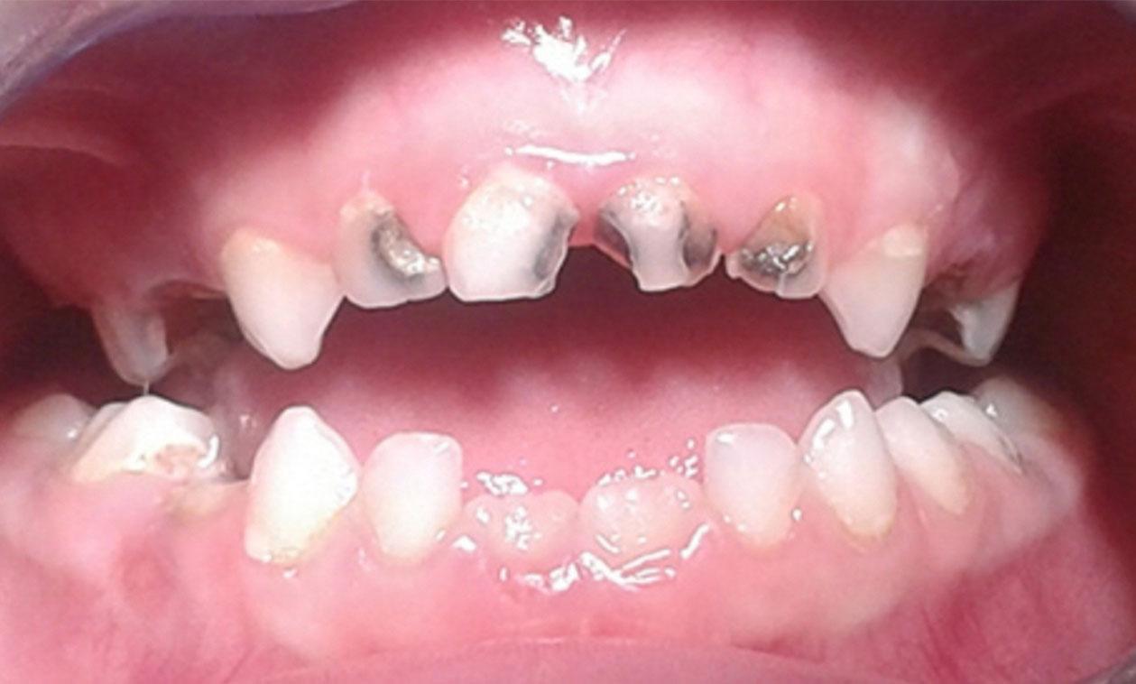 COED | La caries dental en los niños