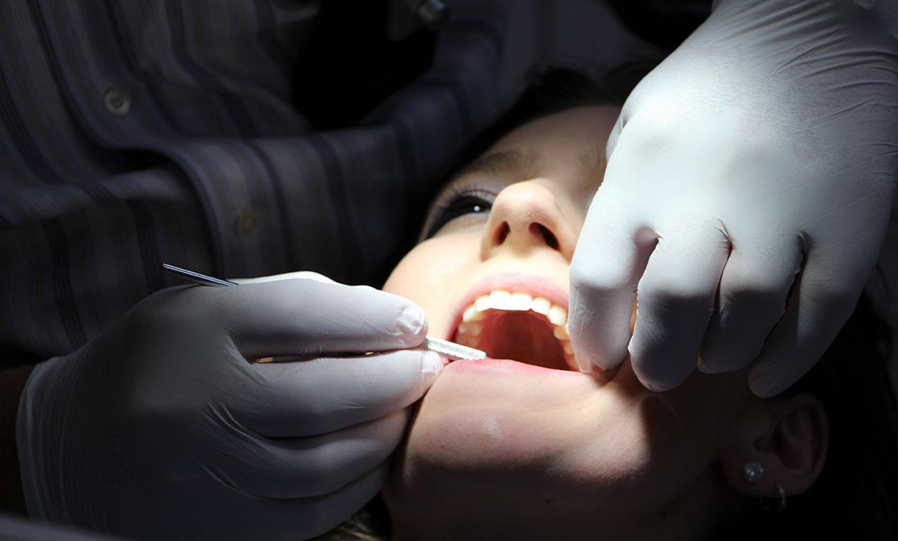 COED | La enfermedad periodontal / Alzheimer