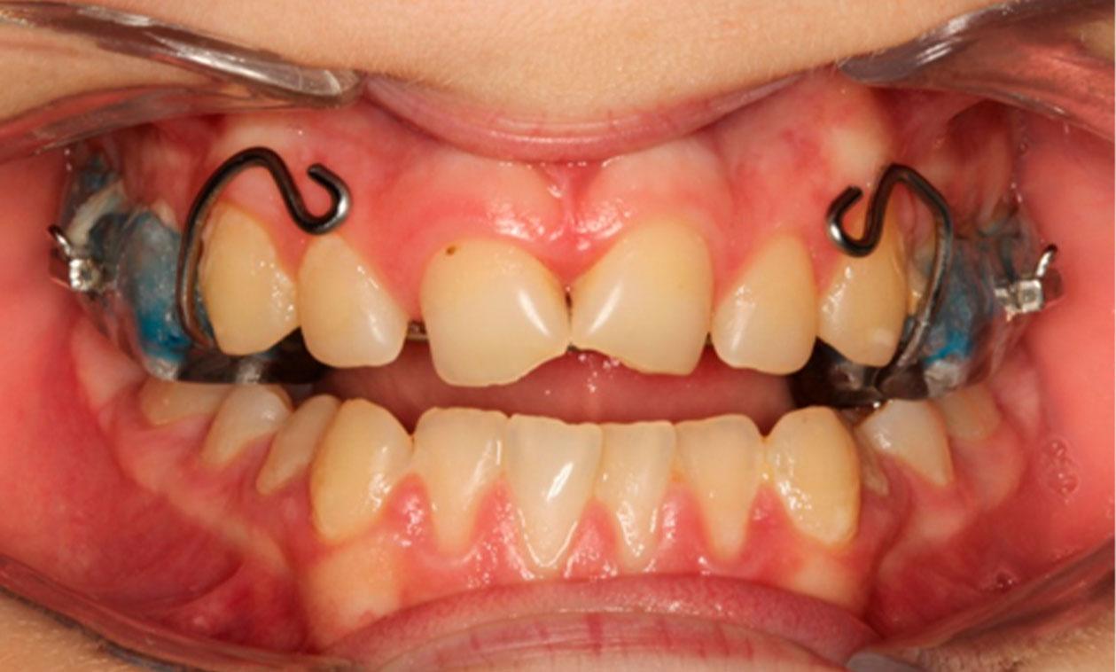 COED   ¿Qué es la ortodoncia interceptiva?