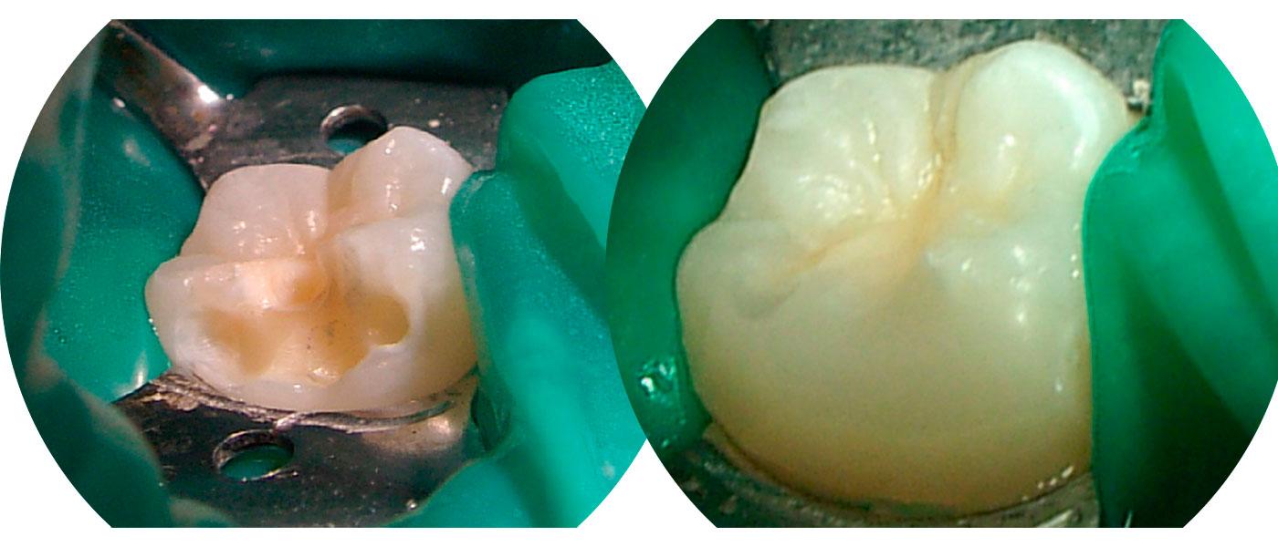 COED    HIM y odontología mínimamente invasiva, su importancia en odontopediatria