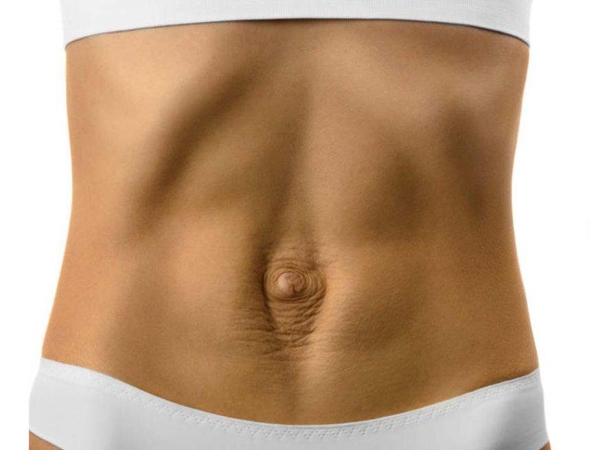 La diástasis abdominal y sus consecuencias
